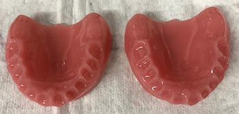 dental-supports-v2-061520181730.jpg